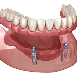 When searching for Dental Implants Near Me? Rely on Marino Dental on Darrow - Dr. Marino & Associates - Affordable Dental Implants