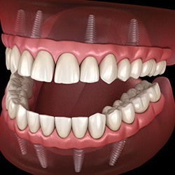 The Facts About Dental Implants and Gum Disease
